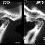Lighter areas indicate the return of bone mass, something very unusual.