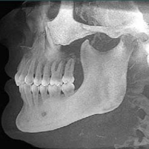 X ray of human jaw
